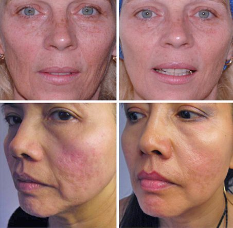 Before and after Micro Needling