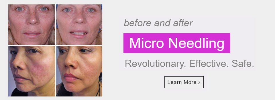 Micro Needling is available at Devereaux Beauty Clinic in Douglas, Cork